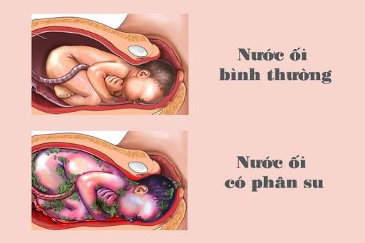 nước ối đục có ảnh hưởng đến thai nhi