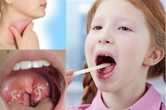 Trẻ bị viêm họng Nguyên nhân và cách điều trị